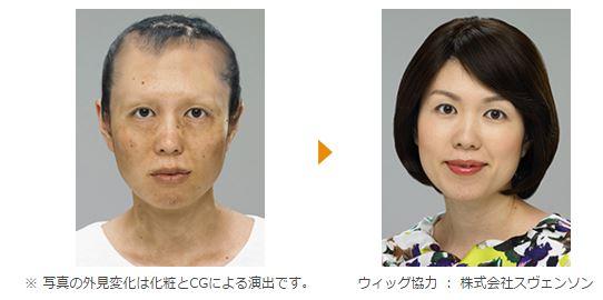 がん治療の副作用や手術による外見のお悩みを化粧の力でカバー